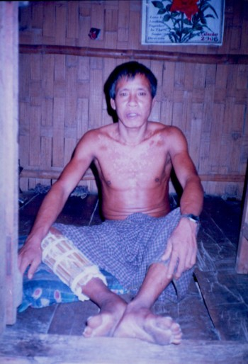 Victim of Bangladesh Army Torture
