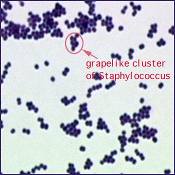 Staphylococcus aureus pyogenic infections
