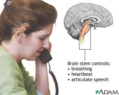 Infarction Brain Stem Brain Stem Stroke May Also
